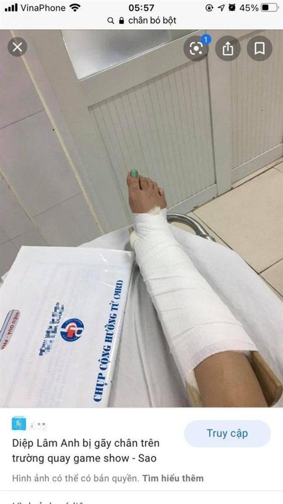 Nghe nhân viên kể khổ bị tai nạn gãy chân, cô gái có màn bóc mẽ nhẹ nhàng chỉ nhờ 1 tấm ảnh lại khiến ai nấy cười lăn lộn-2