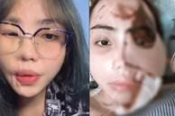 Cô gái bị chồng sắp cưới tạt axit lần đầu lộ diện cả khuôn mặt, tiết lộ 16 lần phẫu thuật đau đớn