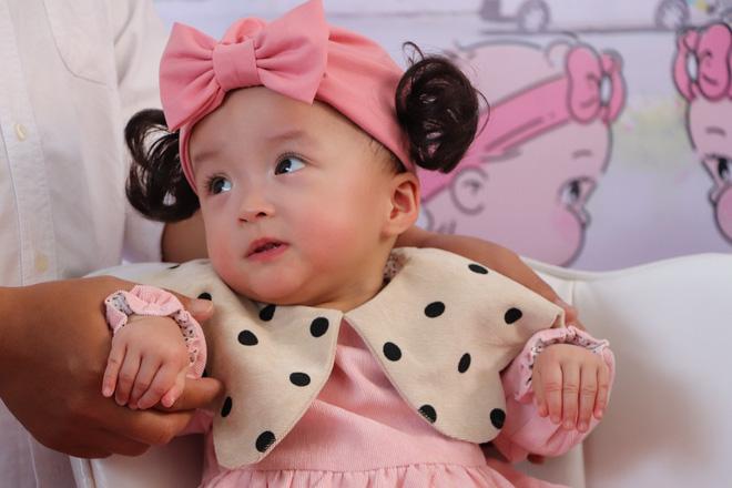 Gần 3 tháng sau ca phẫu thuật tách rời, cặp song sinh Trúc Nhi - Diệu Nhi được xuất viện, xuất hiện cực rạng rỡ và dễ thương-2
