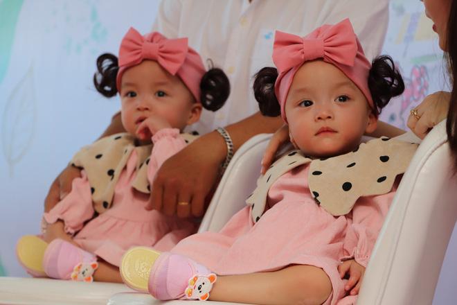 Gần 3 tháng sau ca phẫu thuật tách rời, cặp song sinh Trúc Nhi - Diệu Nhi được xuất viện, xuất hiện cực rạng rỡ và dễ thương-8