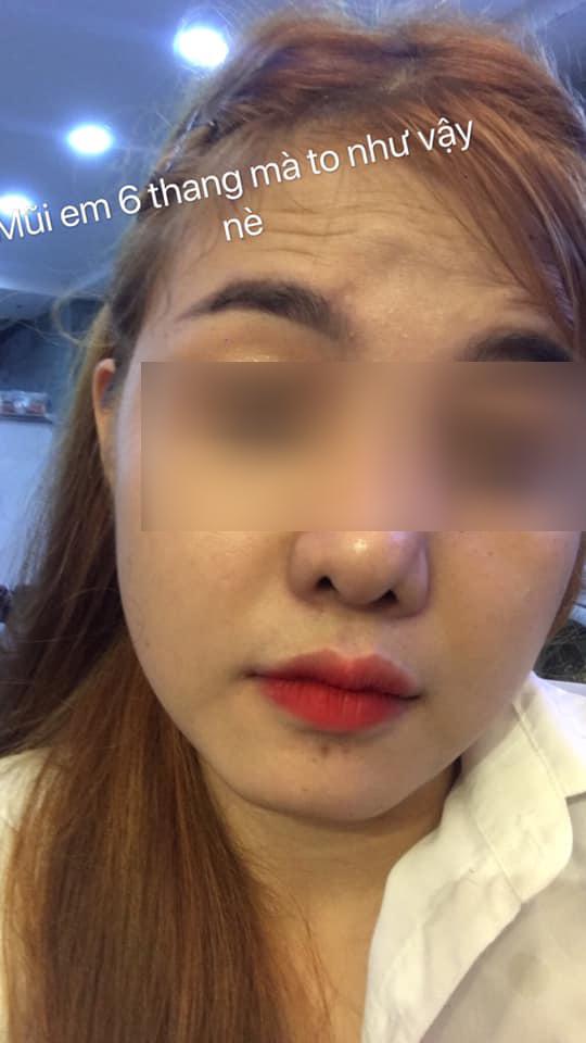 Từ câu chuyện lòi vách ngăn đầu mũi của cô gái trẻ, bác sĩ chỉ ra điều cần khắc cốt ghi tâm trong ăn uống khi nâng mũi làm đẹp-6
