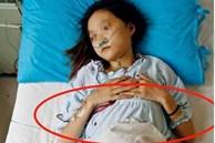 """Con gái 16 tuổi phá thai 4 lần, người mẹ bình tĩnh đưa ra lời """"giải thích"""" khiến bác sĩ choáng váng"""