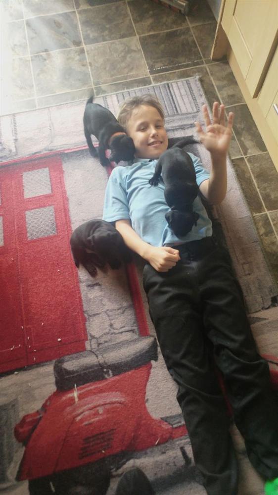 Bé trai 9 tuổi bị mù vĩnh viễn sau khi chiếu tia sáng từ một món đồ chơi vào mắt 2 giây-3