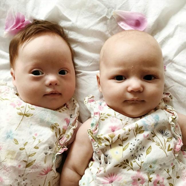 Vừa trao con cho bà mẹ mới sinh, bác sĩ đã phải cúi đầu xin lỗi vì một sai sót nghiêm trọng trong quá trình siêu âm-1
