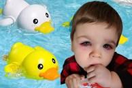 Mẹ hoảng loạn tột độ khi con trai suýt bị mất đi thị lực bởi món đồ chơi quá đỗi quen thuộc, hầu như bé nào cũng có