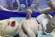 Sức khỏe của bé sơ sinh có da vảy cá ở Quảng Ninh tiên lượng xấu, được chuyển lên BV Nhi Trung ương