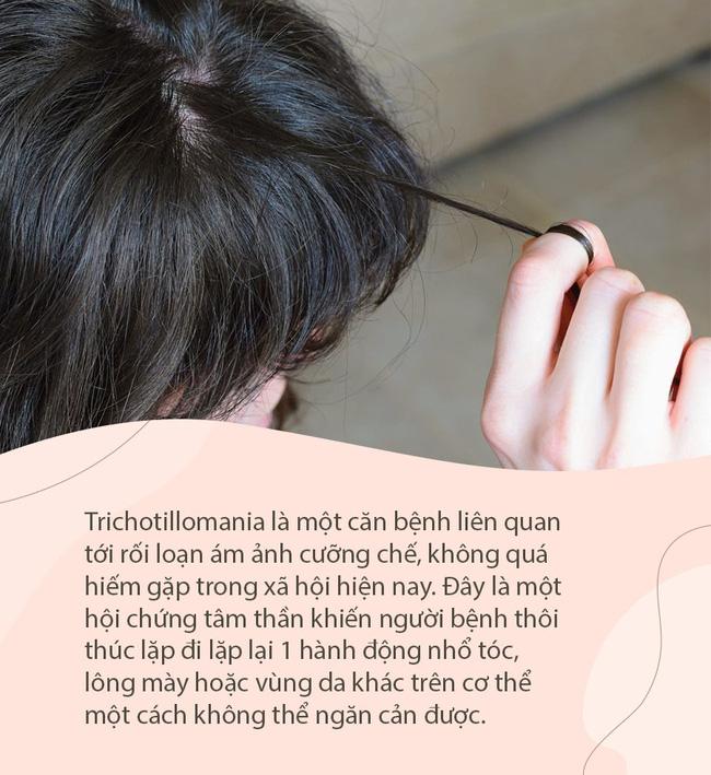 Con gái liên tục tự nhổ tóc mỗi ngày, 15 tuổi đã hói cả đầu, mẹ đưa đi khám mới tá hóa phát hiện sự thật-1
