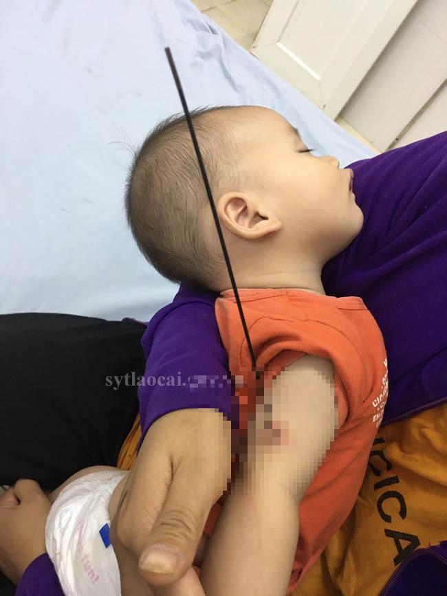 Nan ô đâm xuyên cánh tay bé 6 tháng tuổi-1