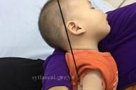 Nan ô đâm xuyên cánh tay bé 6 tháng tuổi