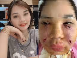 Tiêm mỡ tự thân làm đẹp, cô gái Hà Thành phải rạch mặt sưng nề để nặn ổ mủ-1