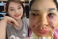 Tiêm mỡ tự thân làm đẹp, cô gái Hà Thành phải rạch mặt sưng nề để nặn ổ mủ