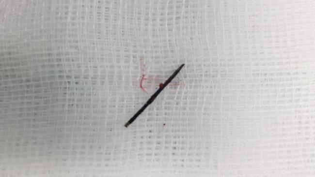 Bé gái 3 tuổi bị sốt cao liên tục, đi khám thì phát hiện chiếc kim khâu dài 17mm trong cột sống-1