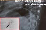 Bé gái 3 tuổi bị sốt cao liên tục, đi khám thì phát hiện chiếc kim khâu dài 17mm trong cột sống