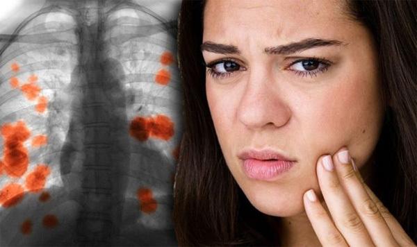 Dấu hiệu lộ trên mặt của ung thư phổi nhưng ít người biết-1