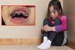 Bé 3 tuổi bị cô lập trong trường mẫu giáo vì miệng đầy những chiếc răng nhỏ màu đen, mẹ muốn chờ thay răng nhưng bác sĩ đã giận dữ
