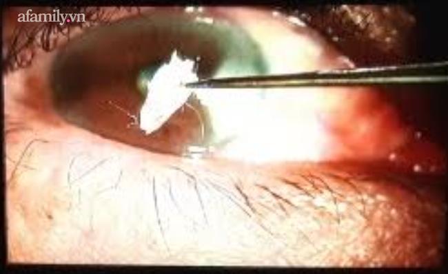 Cấp cứu người đàn ông suýt mù lòa vì bị keo dán sắt bắn thẳng vào mắt rồi đông lại-1