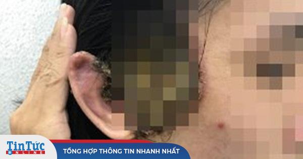 Số người khám bệnh lây qua đường tình dục ở BV Da liễu TP.HCM tăng cao