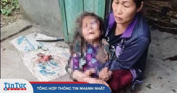 Cụ bà 90 tuổi bị nam thanh niên hành hung dã man, thiêu sống để cướp của