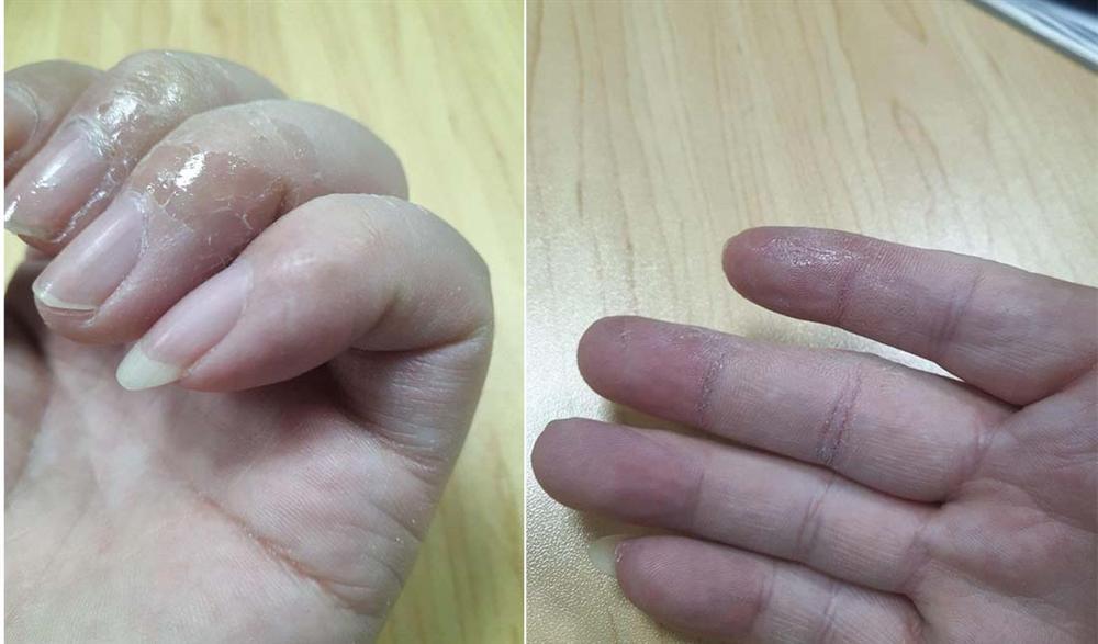 Mẹo khắc phục sự cố chẳng may bị dính keo 502 vào ngón tay-5