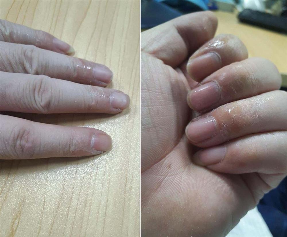 Mẹo khắc phục sự cố chẳng may bị dính keo 502 vào ngón tay-2