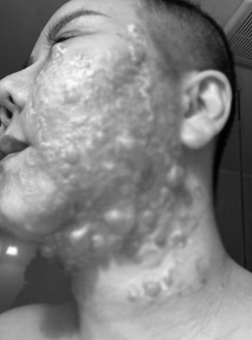 Đầu tư tiền làm trẻ hóa căng da, người phụ nữ bị bỏng rộp hết khuôn mặt-3