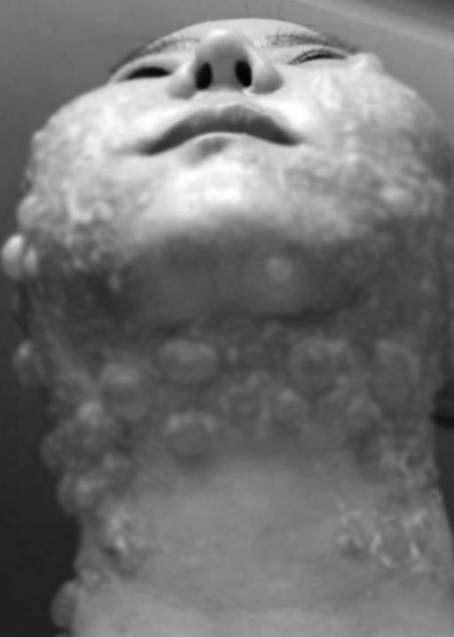 Đầu tư tiền làm trẻ hóa căng da, người phụ nữ bị bỏng rộp hết khuôn mặt-4