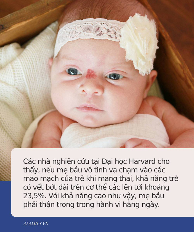 Bác sĩ chỉ ra những hành vi bà bầu cần tránh xa nếu không muốn sinh con ra có những vết bớt xấu xí trên người-2