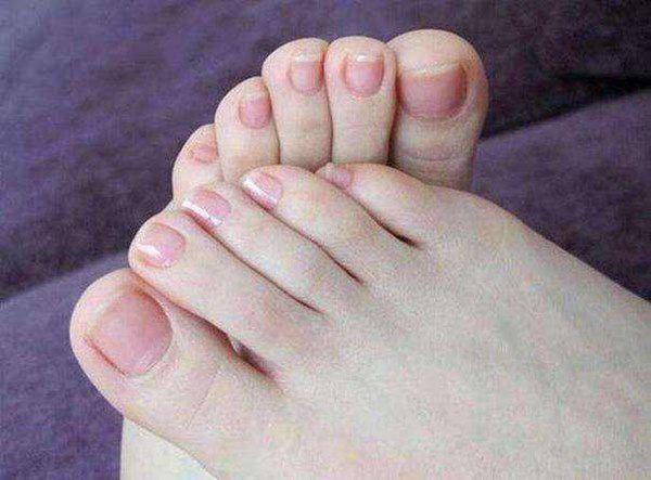 Bỗng dưng thấy bàn chân thay đổi theo 3 cách này, coi chừng bệnh ung thư đang phát triển trong cơ thể, cần lập tức đi khám-1