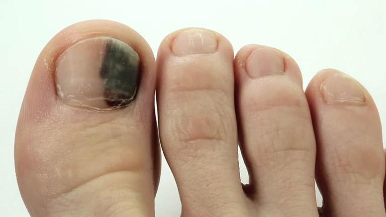 Bỗng dưng thấy bàn chân thay đổi theo 3 cách này, coi chừng bệnh ung thư đang phát triển trong cơ thể, cần lập tức đi khám-3