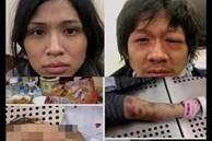 Bản tính ác độc và bệnh hoạn của cặp vợ chồng bạo hành con gái 3 tuổi đến chết