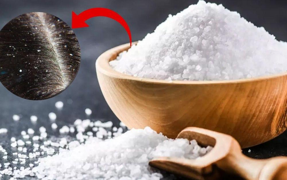 Mùa đông tóc rụng nhiều và có gàu? Áp dụng ngay cách gội đầu bằng nước muối để cải thiện, vừa rẻ lại hiệu quả-3