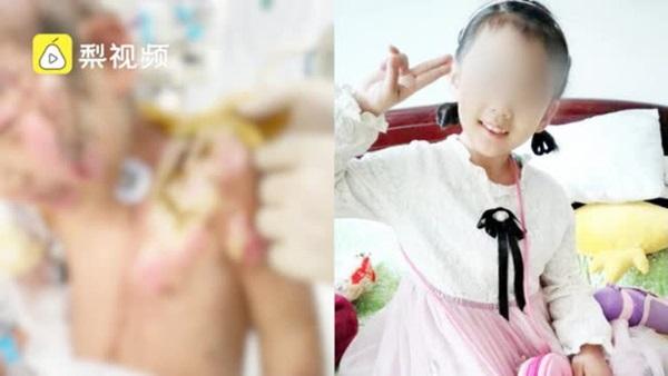 Địa ngục trần gian: Bé gái 6 tuổi bị mẹ ruột cùng bạn trai bạo hành dã man 3 tháng trời, bố đẻ gặp lại cũng không nhận ra con mình-1