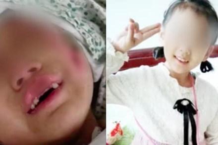 'Địa ngục trần gian': Bé gái 6 tuổi bị mẹ ruột cùng bạn trai bạo hành dã man 3 tháng trời, bố đẻ gặp lại cũng không nhận ra con mình