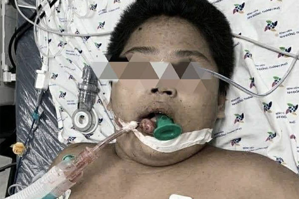 Bị bạn liên tục nhấn nước khi đi bơi tại hồ bơi, bé trai 14 tuổi nhập viện