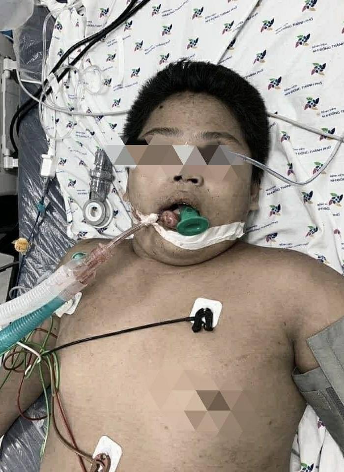 Bị bạn liên tục nhấn nước khi đi bơi tại hồ bơi, bé trai 14 tuổi nhập viện nguy kịch: Tím tái, không thở được-1