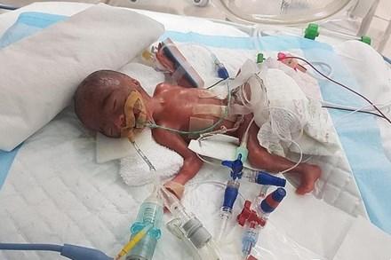 Dù chào đời chỉ nặng hơn 3 lạng - nhỏ hơn cả lon nước ngọt, nhưng hình ảnh hiện tại của bé gái khiến nhiều người phải kinh ngạc