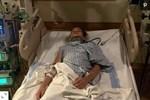 Nhảy trên tấm bạt lò xò, bé gái 13 tuổi bị liệt nửa thân dưới do đột quỵ