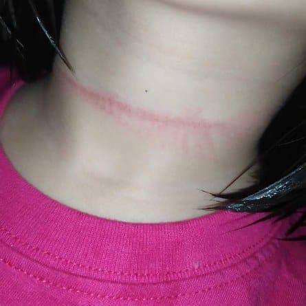 Bé gái 4 tuổi suýt mất mạng khi cố treo cổ tự tử theo một thử thách trên Tiktok-1