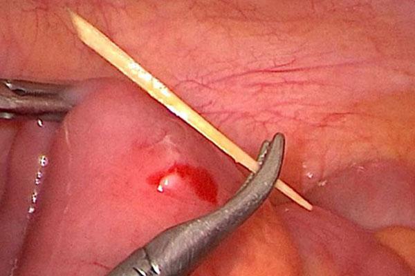 Đau bụng sau khi ăn phở, cô gái đi khám phát hiện thủng ruột non do nuốt phải tăm tre-1