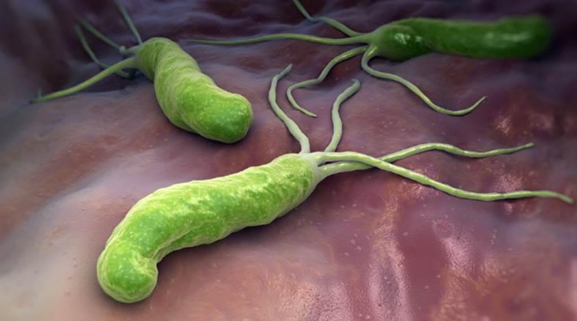 Loại vi khuẩn làm mòn bao tử mà WHO xếp vào nhóm gây ung thư số 1: Cực kỳ dễ lây qua 3 con đường, khuyến cáo tránh ăn 3 món để ngừa bệnh-1