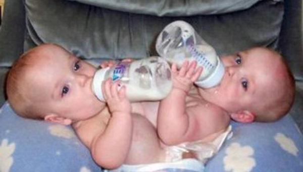 Ca sinh ba đặc biệt có 2 bé dính liền, chào đời với cân nặng chưa đầy 1kg đã bị mẹ bỏ rơi và 16 năm sau nhìn lại ai cũng mỉm cười-4