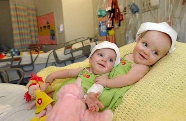 Ca sinh ba đặc biệt có 2 bé dính liền, chào đời với cân nặng chưa đầy 1kg đã bị mẹ bỏ rơi và 16 năm sau nhìn lại ai cũng mỉm cười-5