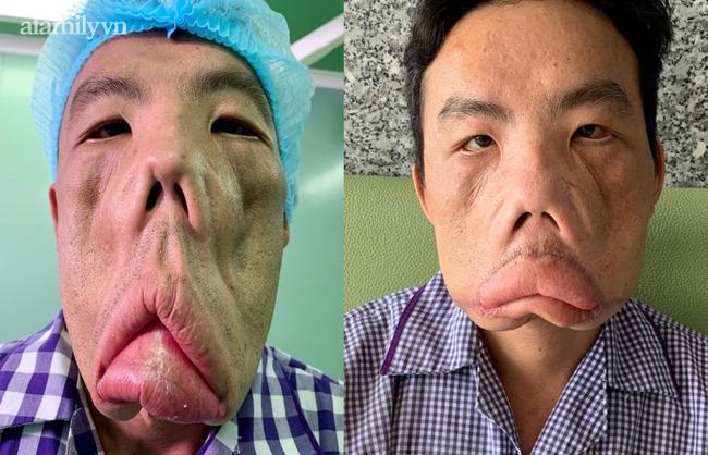 Căn bệnh của người đàn ông mặt quỷ đã được giải mã, giành giải thưởng tại cuộc thi y khoa ở Hoa Kỳ-2
