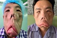 Căn bệnh của người đàn ông 'mặt quỷ' đã được giải mã, giành giải thưởng tại cuộc thi y khoa ở Hoa Kỳ