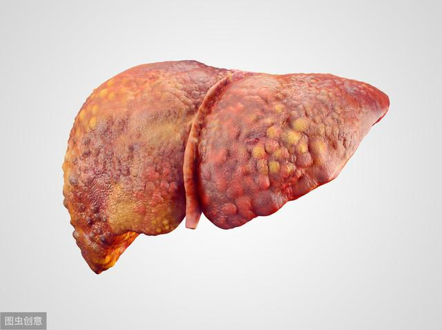 Từng người trong nhà lần lượt phát hiện ung thư gan, bác sĩ nhắc: 4 loại virus, vi khuẩn gây ung thư lây từ người sang người-1
