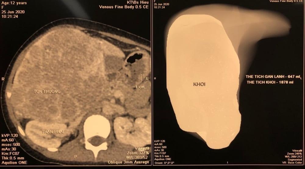 Người phụ nữ mang khối u tương đương thai nhi 7 tháng tuổi-1