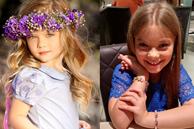 6 chi tiết ảnh hưởng lớn đến ngoại hình của trẻ nhưng hiếm khi cha mẹ nhận thấy, chẳng tráchbé rất đẹp khi còn nhỏ nhưng lớn lênlại kém xinh