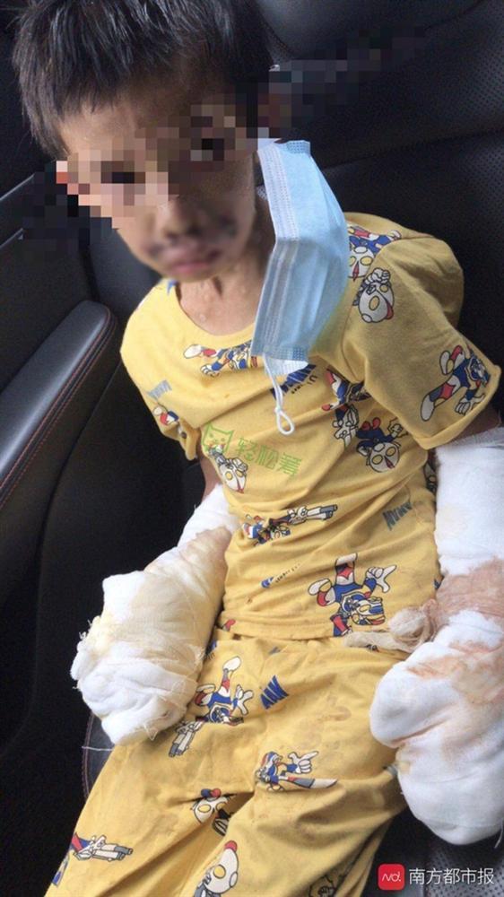 Bé trai 7 tuổi tàn phế vì bị bạo hành: Bố đâm tàn thuốc khắp người, mẹ dùng dao khứa vào chân, hình ảnh nạn nhân gây đau lòng-1