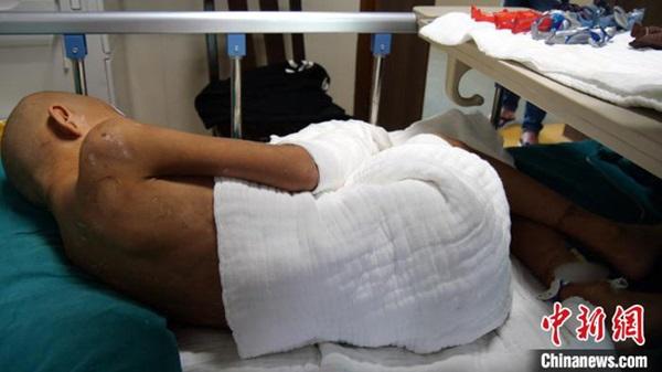 Bé trai 7 tuổi tàn phế vì bị bạo hành: Bố đâm tàn thuốc khắp người, mẹ dùng dao khứa vào chân, hình ảnh nạn nhân gây đau lòng-2