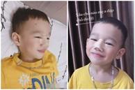 Thực hư hình ảnh bé trai 3 tuổi đã phẫu thuật nâng mũi kèm lời khẳng định của người mẹ: 'Xấu chỗ nào mẹ đập chỗ đó'